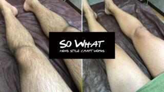 So What足の脱毛