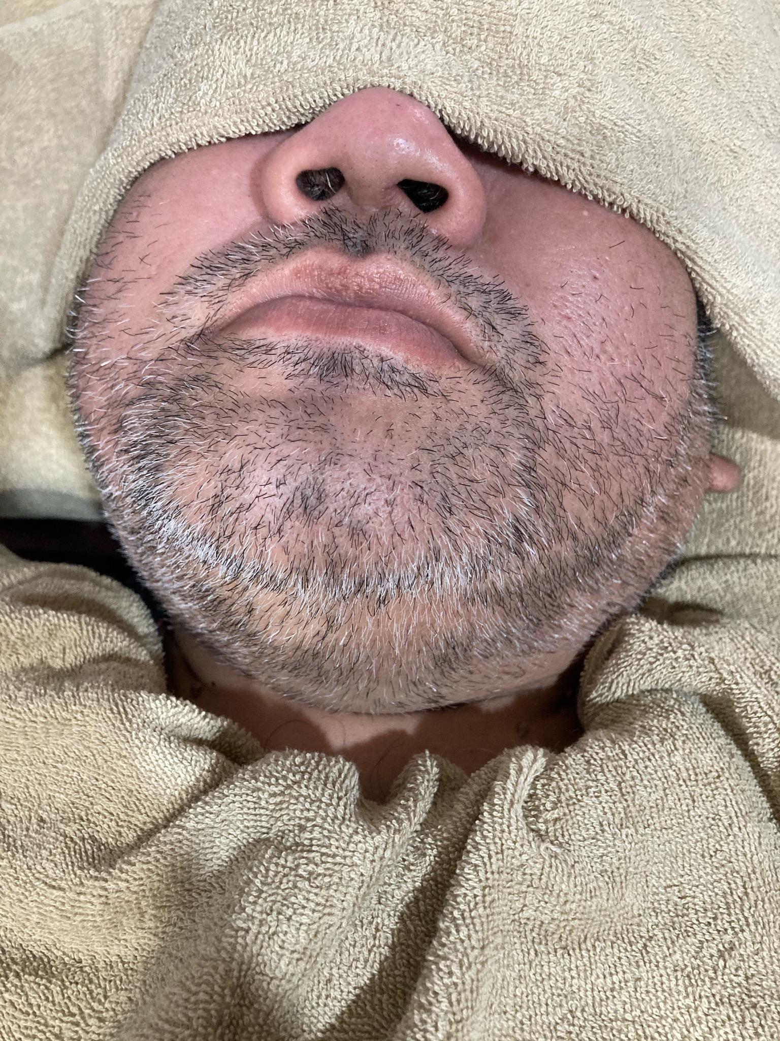 白髪ヒゲ脱毛
