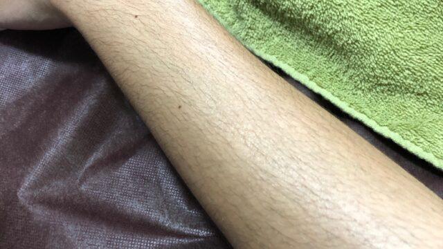 腕のダブル脱毛